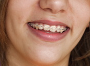 Zahnkorrektur Erwachsene